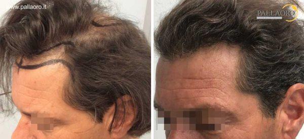 trapianto capelli 0302
