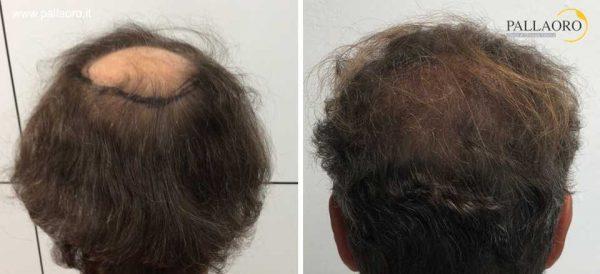 trapianto capelli 0303