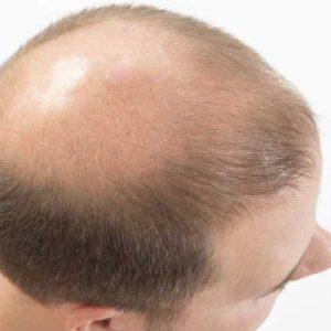 calvizie trapianto capelli Vicenza