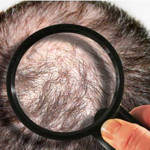 capelli Bussolengo