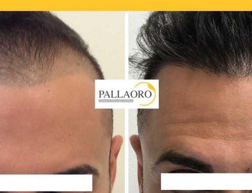 Trapianto capelli Vicenza – Micro FUE HD – Autotrapianto capelli Vicenza