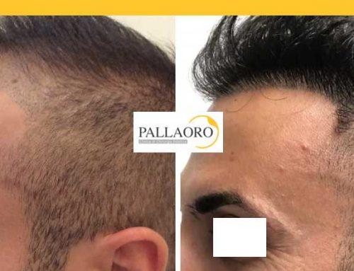 Trapianto capelli Verona – Micro FUE HD – Autotrapianto capelli Verona