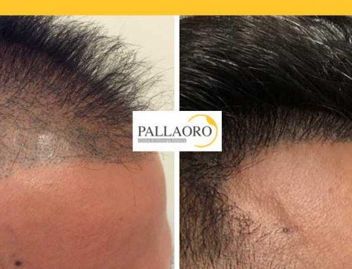 Trapianto capelli Soave – Micro FUE HD – Autotrapianto capelli Soave