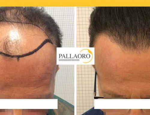 Trapianto capelli Thiene – Micro FUE HD – Autotrapianto capelli Thiene