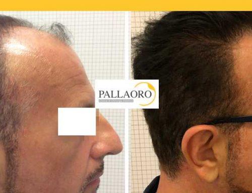 Trapianto capelli Padova – Micro FUE HD – Autotrapianto capelli Padova