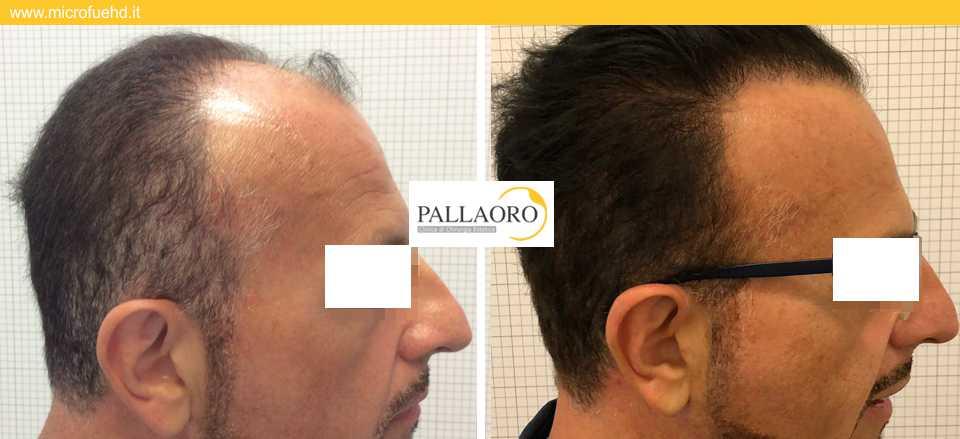trapianto capelli 3008 Padova