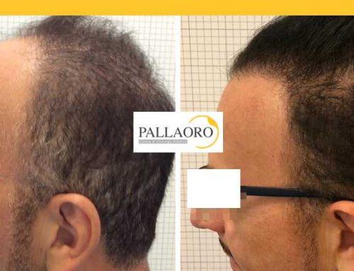 Trapianto capelli Cittadella – Micro FUE HD – Autotrapianto capelli Cittadella