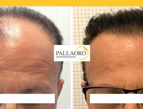 Trapianto capelli Abano – Micro FUE HD – Autotrapianto capelli Abano