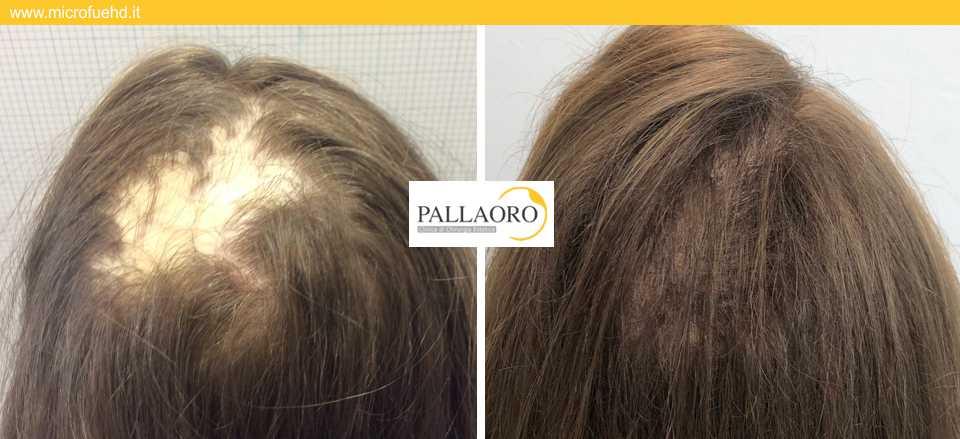 trapianto capelli 3011