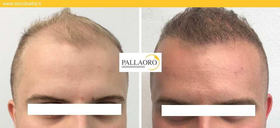 trapianto capelli 3012