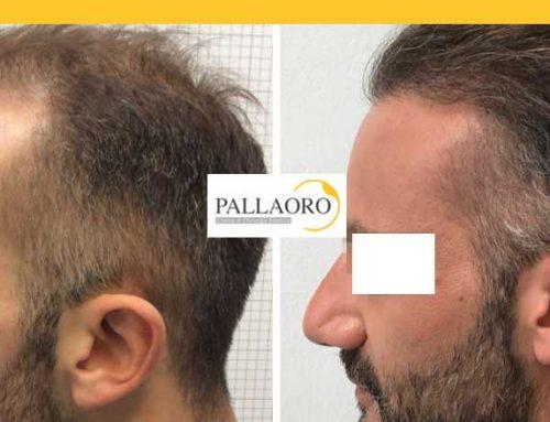 Micro FUE HD Trapianto capelli Montebelluna – Autotrapianto capelli Montebelluna