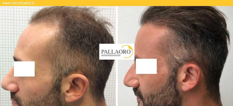 trapianto capelli 3014