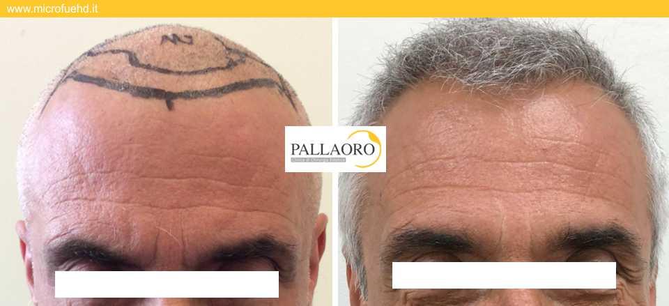 trapianto capelli Castelfranco Veneto