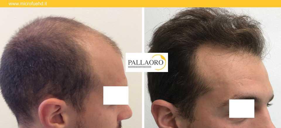 trapianto capelli 3020