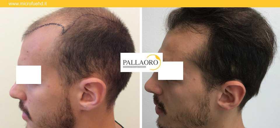 trapianto capelli 3022
