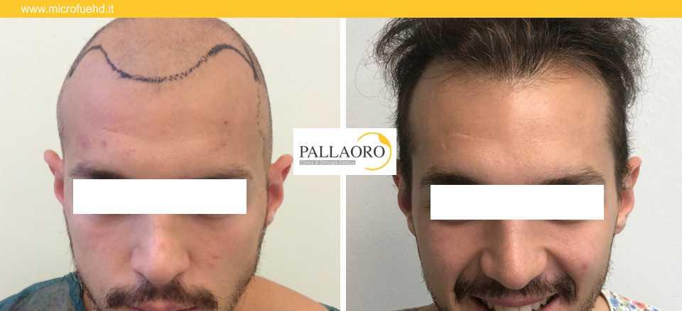 trapianto capelli 3023