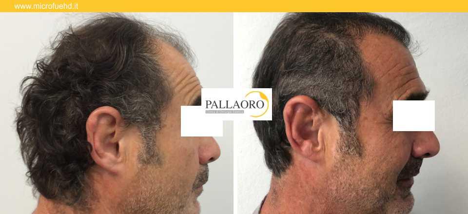 trapianto capelli 3024