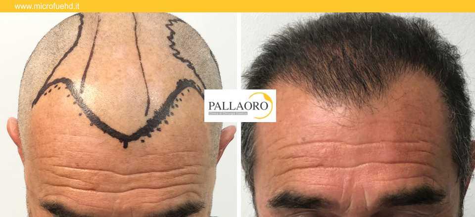 trapianto capelli 3026
