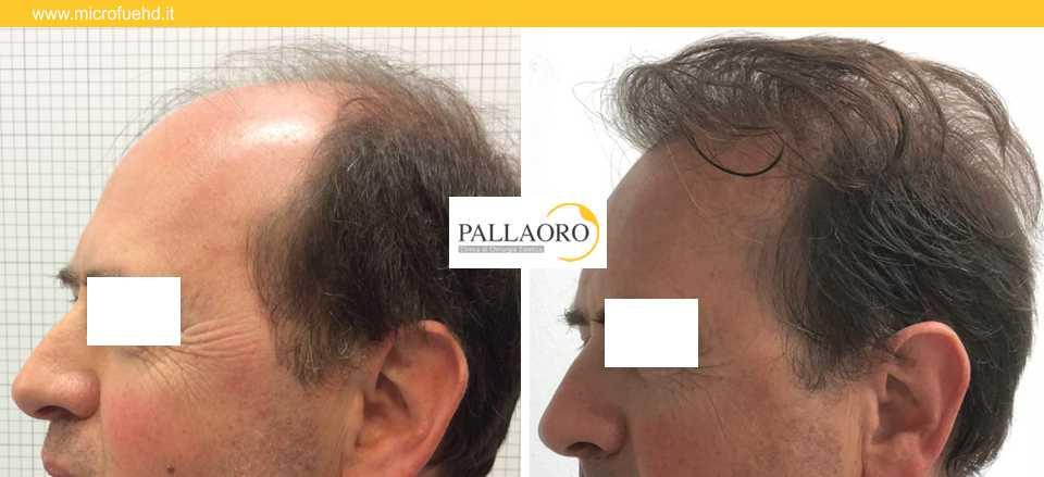 trapianto capelli 3027