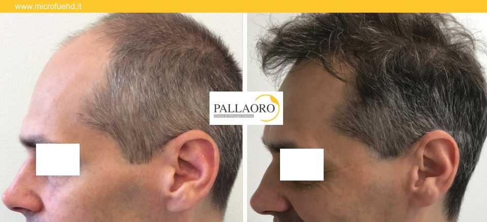 trapianto capelli 3031