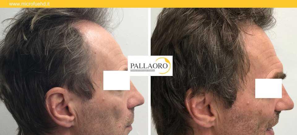 trapianto capelli 3035